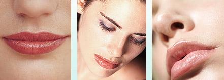 Lip enhancement Dermal Fillers