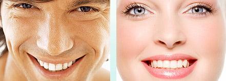 straight white teeth chester